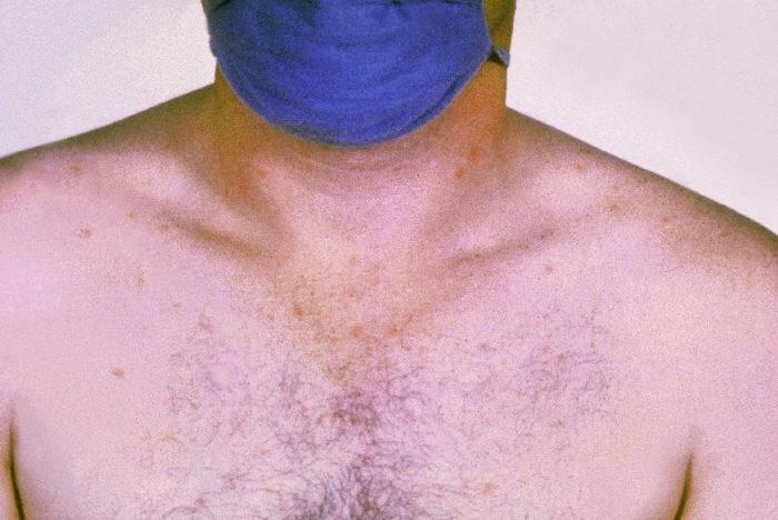 Sespa confirma surto de febre tifóide em município do Pará