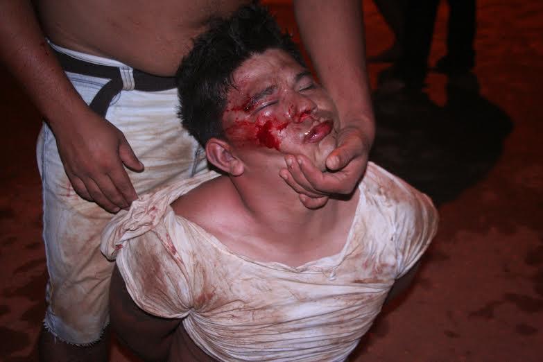 Parauapebas: Festa de aniversario termina com três pessoas baleadas no Betânia