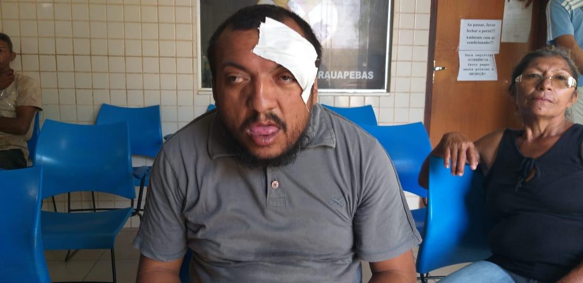 'Odilonzinho' detalha agressão que sofreu dentro do Eletro Mateus de Parauapebas